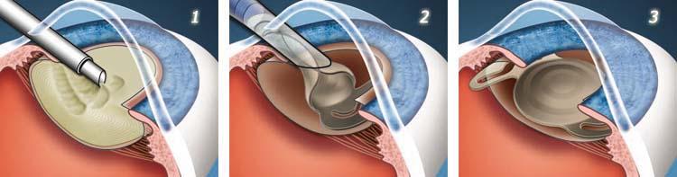 1. Процесс факоэмульсификации; 2. Имплантация ИОЛ; 3. Имплантированный искусственный хрусталик